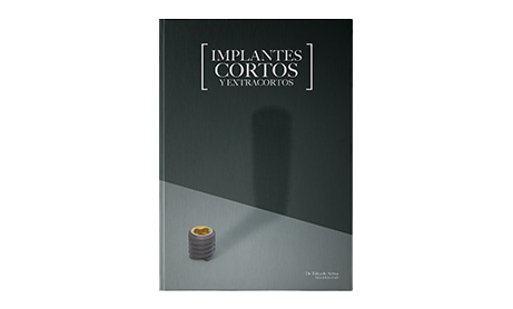 Implantes cortos y extracortos por Eduardo Anitua